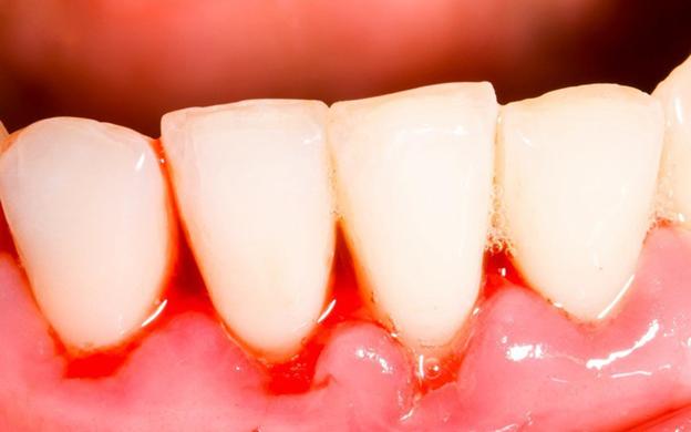 Cảnh báo! Tiềm ẩn nguy cơ bệnh lý từ chảy máu chân răng - Ảnh 1