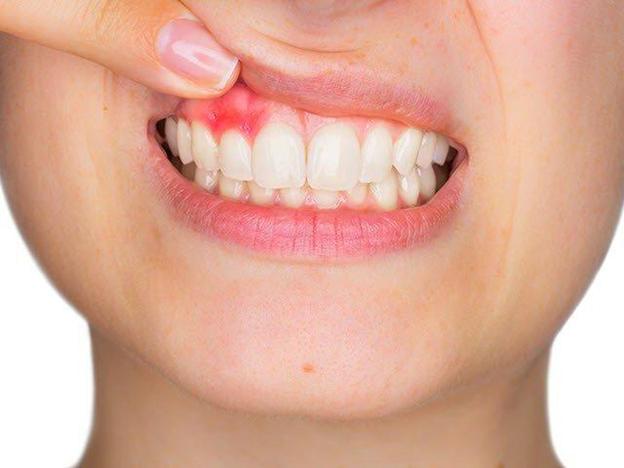 Nước súc miệng dược liệu Rona có cải thiện được chứng viêm lợi hay không? - Ảnh 1