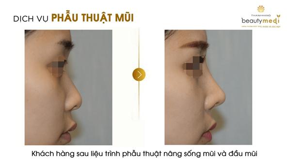 Phẫu thuật thẩm mỹ mũi và những điều bạn nên biết - Ảnh 3
