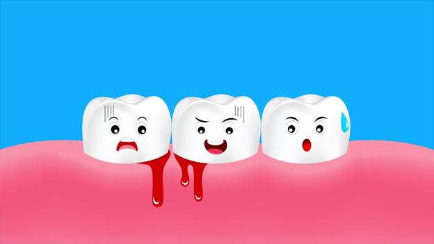 Chảy máu chân răng- Chớ nên coi thường kẻo hối không kịp - Ảnh 1