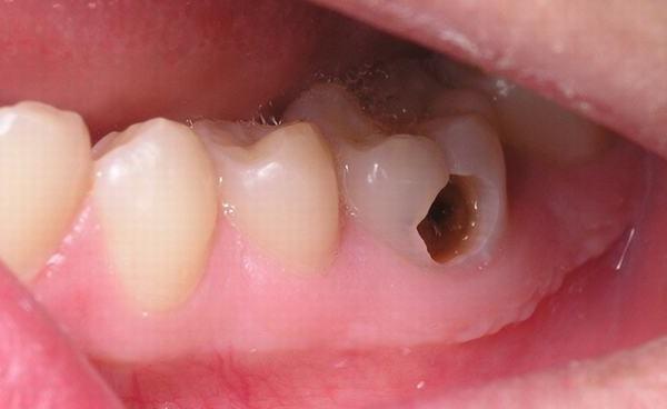 Top 5 bệnh lý răng miệng nguy hiểm mà người Việt Nam nào cũng mắc phải một lần trong đời - Ảnh 2