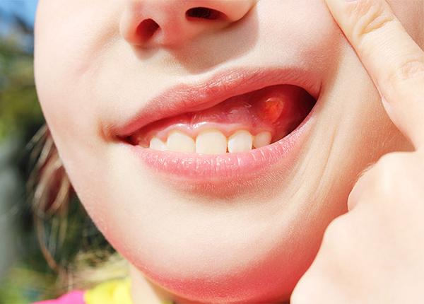 Nha sĩ lưu ý về biến chứng bệnh áp xe răng cần phải tránh - Ảnh 1