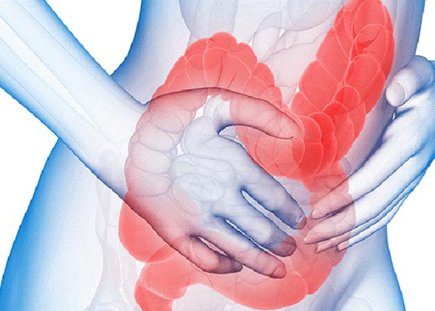 Dấu hiệu, nguyên nhân cách phòng và điều trị hội chứng ruột kích thích - Ảnh 1