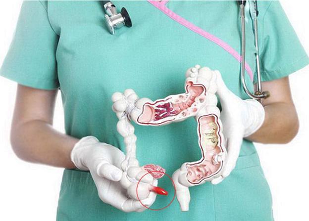Những lưu ý quan trọng về bệnh viêm ruột thừa - Ảnh 1