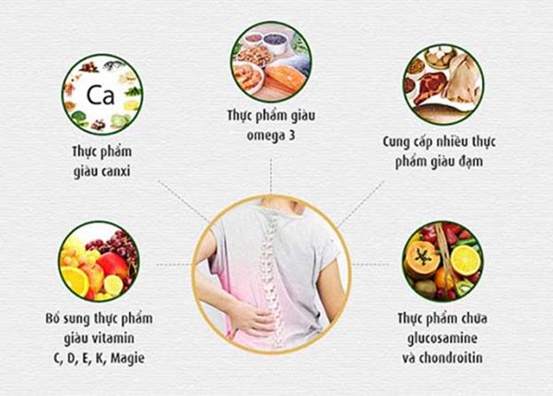 Thực phẩm nào người bị gai cột sống nên và không nên sử dụng? - Ảnh 1