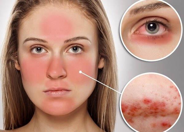 Những lưu ý quan trọng về bệnh Lupus ban đỏ - Ảnh 1