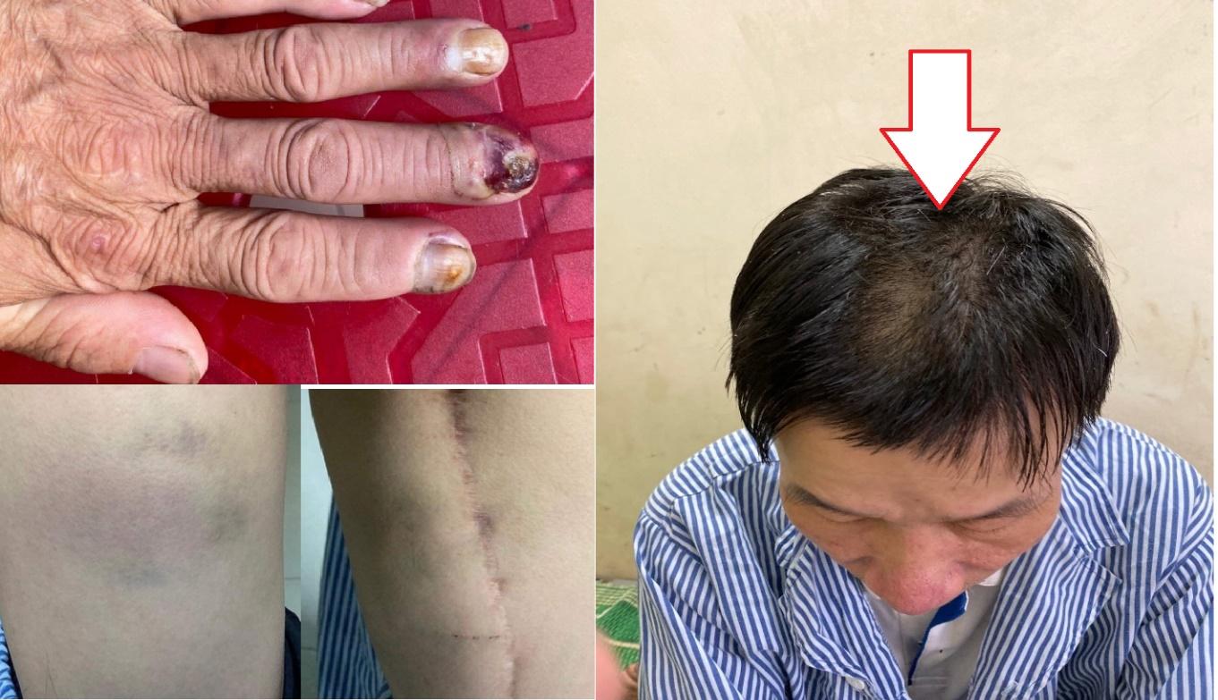 Vĩnh Tuy (Bắc Quang – Hà Giang): Cần làm rõ hành vi đánh đập dã man công dân với lý do sai sót nghiệp vụ? - Ảnh 1