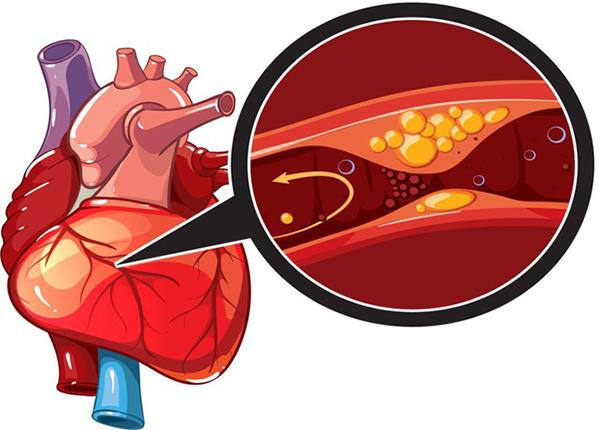 Hướng dẫn chế độ dinh dưỡng cho bệnh nhân thiếu máu cục bộ cơ tim - Ảnh 1