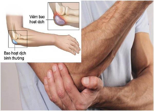 Những điều bạn cần lưu ý về bệnh viêm bao hoạt dịch - Ảnh 1