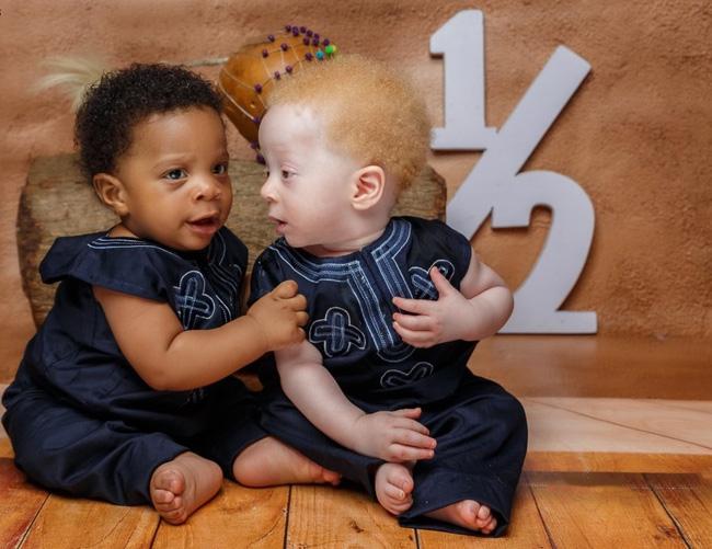 Chào đời cách nhau vài phút, cặp song sinh lại có điểm khác biệt đến ngỡ ngàng - Ảnh 4