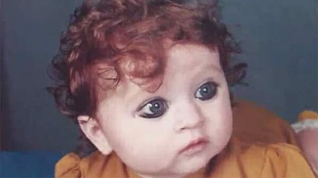 """Bé gái sinh ra bị nguyền rủa là """"quái vật"""", 20 năm sau """"dậy thì thành công"""" khiến ai cũng trầm trồ - Ảnh 1"""