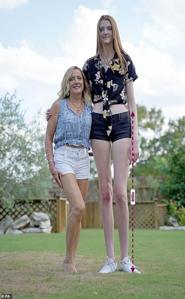 """Thiếu nữ Mỹ xinh đẹp """"vượt mặt"""" ngôi sao bóng rổ người Nga, """"soán ngôi"""" đôi chân dài nhất thế giới - Ảnh 2"""