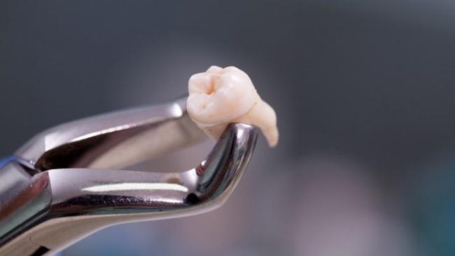 Nhổ 20 chiếc răng cùng lúc, người phụ nữ hôn mê trong 9 ngày rồi tử vong - Ảnh 1