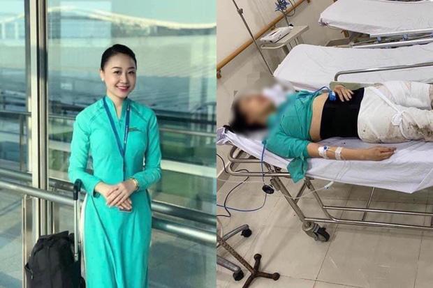 Nữ tiếp viên hàng không bị tông thương tật 75%, tài xế Mercedes chưa từng hỏi thăm - Ảnh 2