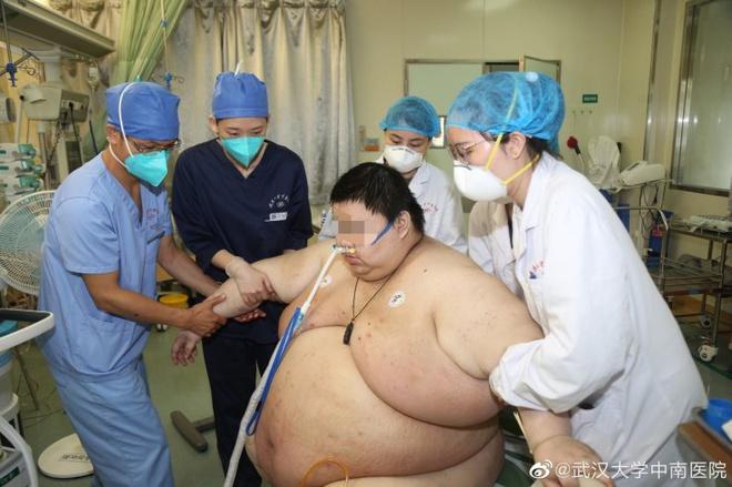 Tăng 100kg sau 5 tháng cách ly, chàng trai 26 tuổi phải cầu cứu bác sĩ - Ảnh 1