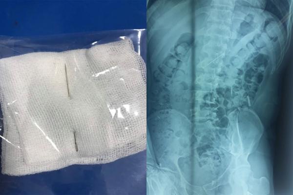 Tin tức đời sống mới nhất ngày 7/6/2020: Nuốt phải kim khâu, bệnh nhân bị đâm thủng dạ dày - Ảnh 1