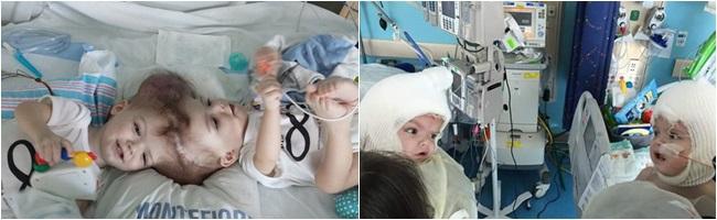 Những cặp bé song sinh dính liền người hiếm gặp trên thế giới, bố mẹ nghẹt thở chờ phẫu thuật tách rời - Ảnh 3