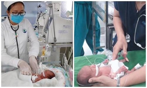 Cứu sống trẻ sinh non 0,8kg, bị viêm phúc mạc do thủng tạng - Ảnh 1
