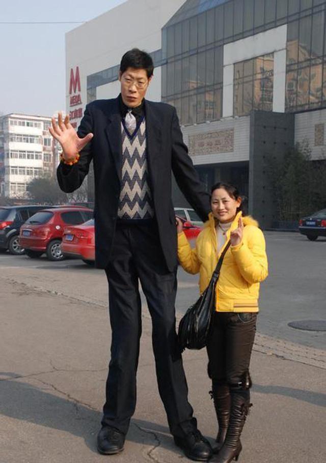 """""""Sinh vật kỳ lạ"""" kết hôn 21 năm nhưng không có con, bất hạnh đến từ chiều cao 2m42 - Ảnh 6"""