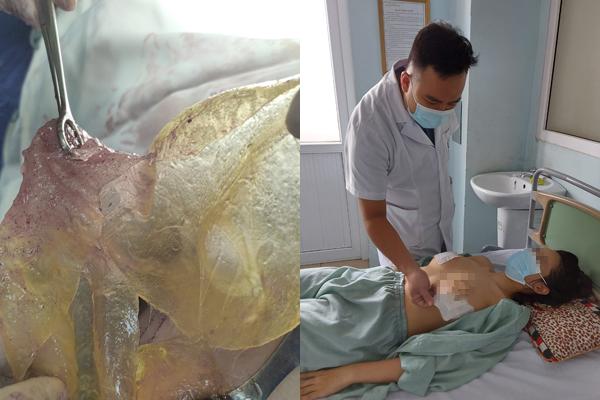 Tin tức đời sống mới nhất ngày 17/9/2020: Bị vỡ túi silicon, người phụ nữ phát hiện u ở ngực - Ảnh 1