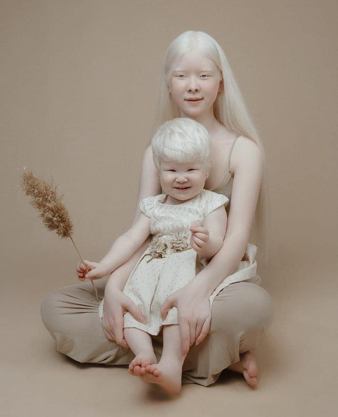 Vẻ đẹp mong manh, thuần khiết tựa hoa tuyết của cặp chị em bạch tạng - Ảnh 1