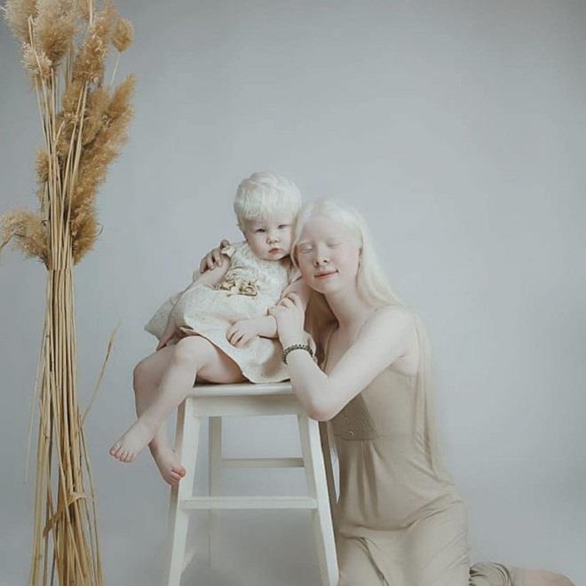 Vẻ đẹp mong manh, thuần khiết tựa hoa tuyết của cặp chị em bạch tạng - Ảnh 3