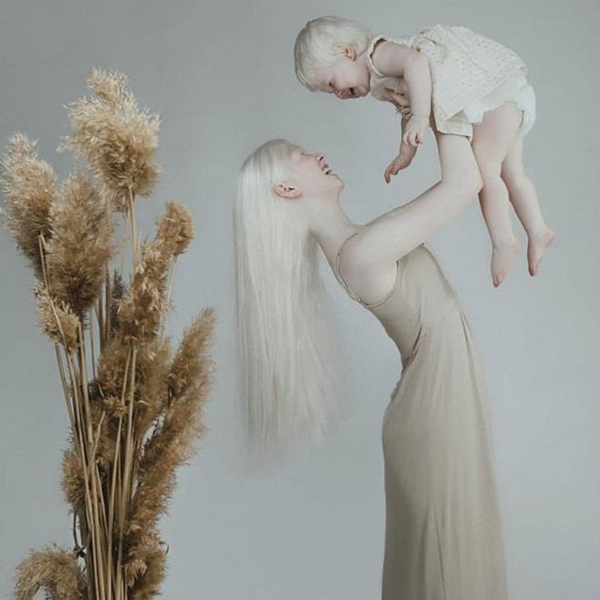 Vẻ đẹp mong manh, thuần khiết tựa hoa tuyết của cặp chị em bạch tạng - Ảnh 4