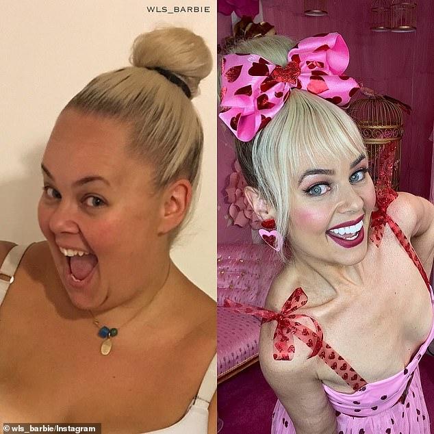 Nàng béo 154kg phẫu thuật cắt bỏ 80% dạ dày, lột xác kinh ngạc để giống búp bê Barbie - Ảnh 5