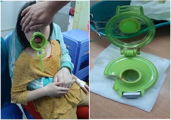 Tin tức đời sống ngày 6/1: Bé gái bị kẹt lưỡi trong bình nước uống - Ảnh 1