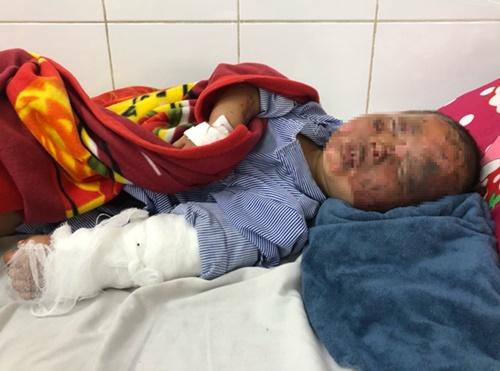 Tin tức đời sống ngày 12/2: Bé 3 tuổi bị bỏng nặng do pháo tự chế phát nổ - Ảnh 1