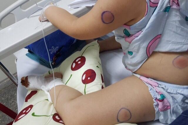 """Bị gà mổ gây vết thương ở ngón chân, bé gái nhiễm vi khuẩn """"ăn thịt người"""" - Ảnh 1"""