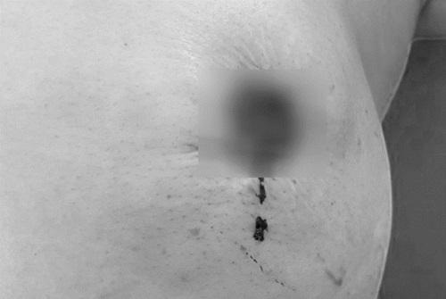 Tin tức đời sống ngày 26/3: Mất núm ngực do đắp thuốc nam chữa ung thư - Ảnh 1