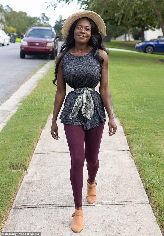 Mơ ước vòng eo nhỏ nhất thế giới, người phụ nữ đeo đai nịt bụng 38 cm suốt 18 tiếng - Ảnh 3