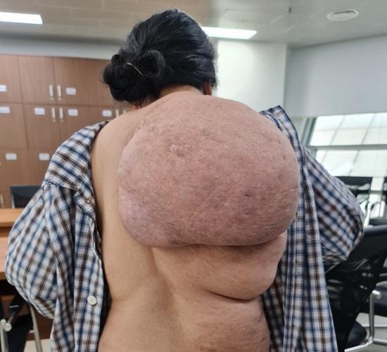 Người phụ nữ đeo khối u khổng lồ trên lưng trong suốt 30 năm - Ảnh 1