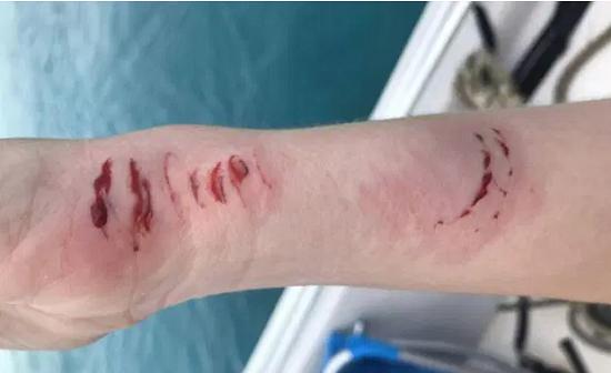 """""""Nhởn nhơ"""" chụp ảnh cùng cá mập trong tuần trăng mật, cô gái nhận kết cục đau đớn không ngờ  - Ảnh 3"""