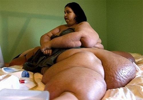 """Từng bị gọi là """"sát thủ nửa tấn"""", người phụ nữ giảm liền 363kg, hình ảnh hiện tại gây ấn tượng - Ảnh 1"""