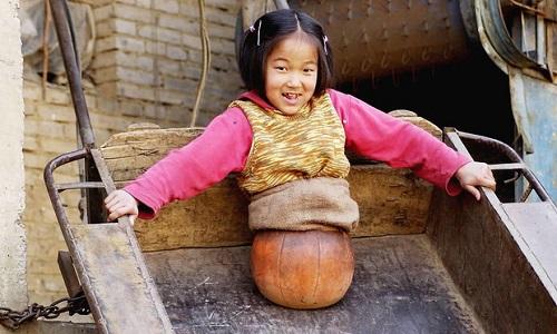 """Cuộc sống của """"cô bé bóng rổ"""" phải cắt bỏ toàn bộ thân dưới khiến triệu người xót xa giờ ra sao? - Ảnh 1"""