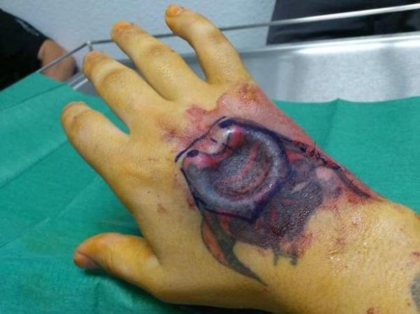 """Kinh hãi """"dị nhân"""" làm 17 cuộc phẫu thuật để trông giống đầu lâu dù bị gọi là """"kẻ dở hơi"""" - Ảnh 2"""