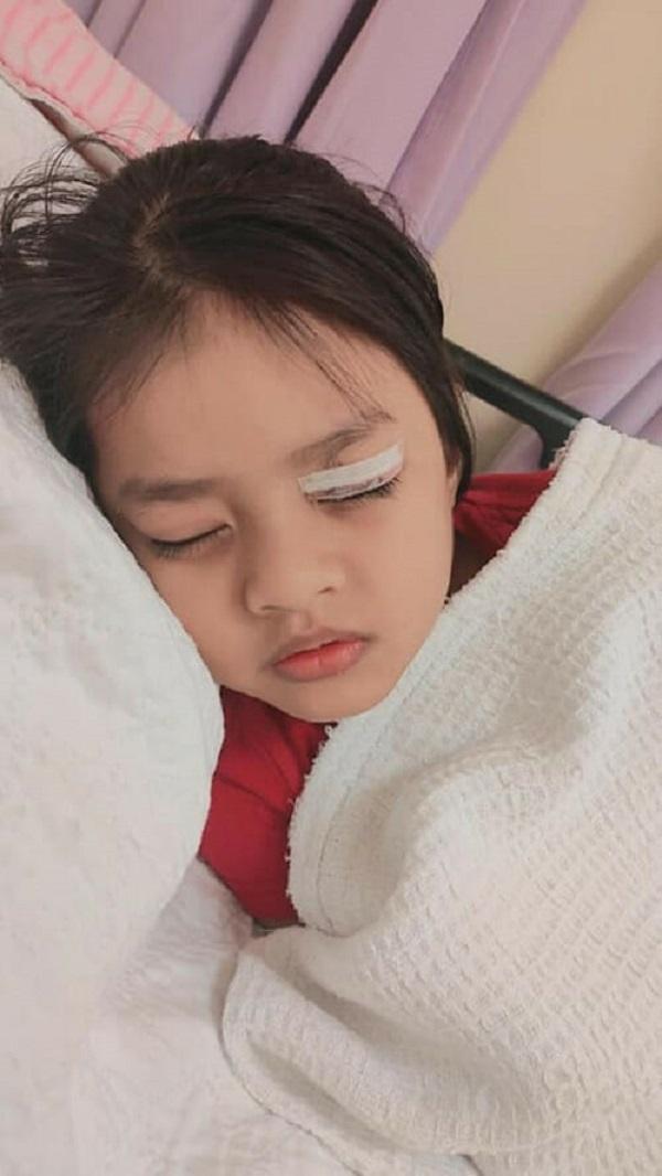 Hoảng hồn bé gái 6 tuổi suýt mù một bên mắt vì đồ vật quen thuộc nhà nào cũng có - Ảnh 2