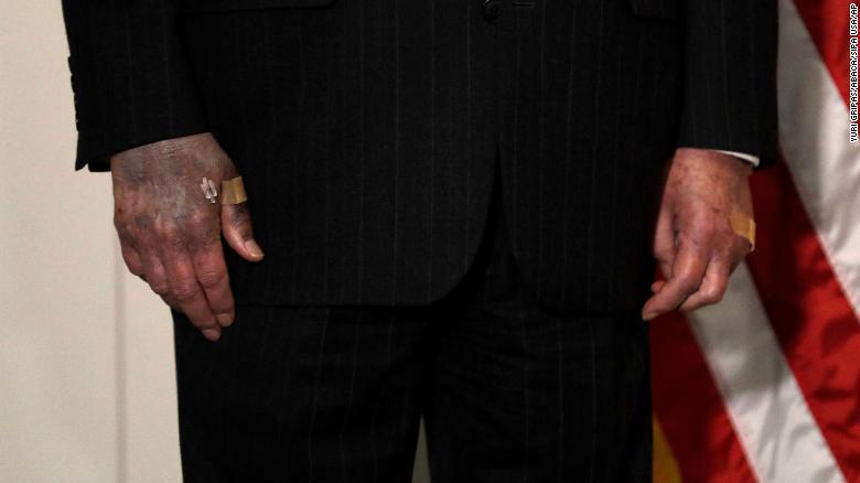Lãnh đạo Thượng viện Mỹ gây lo lắng bởi bàn tay chuyển màu khác thường - Ảnh 1