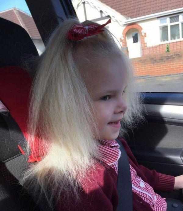 Mắc hội chứng hiếm gặp, bé gái người Anh sở hữu mái tóc y hệt thiên tài Vật lý Einstein - Ảnh 3