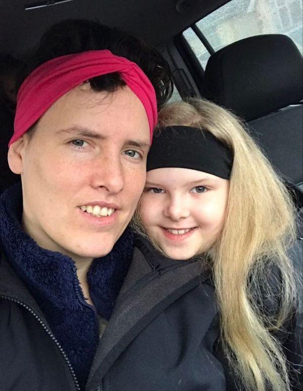 Mắc hội chứng hiếm gặp, bé gái người Anh sở hữu mái tóc y hệt thiên tài Vật lý Einstein - Ảnh 4