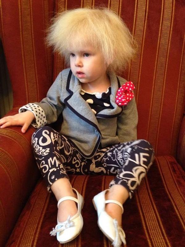 Mắc hội chứng hiếm gặp, bé gái người Anh sở hữu mái tóc y hệt thiên tài Vật lý Einstein - Ảnh 2