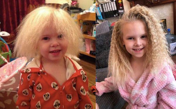 Mắc hội chứng hiếm gặp, bé gái người Anh sở hữu mái tóc y hệt thiên tài Vật lý Einstein - Ảnh 1