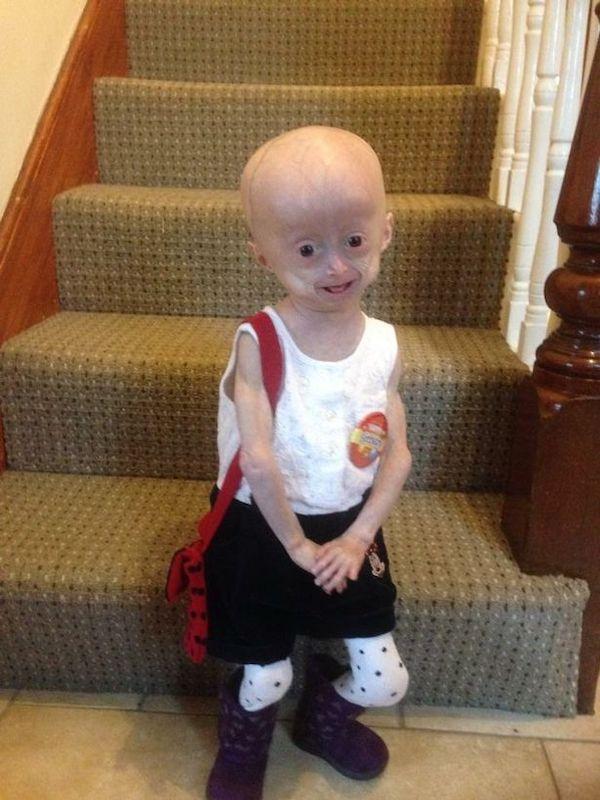 Xót xa hình ảnh bé 8 tuổi nhưng mang hình hài bà lão 70 tuổi do căn bệnh hiếm gặp - Ảnh 1