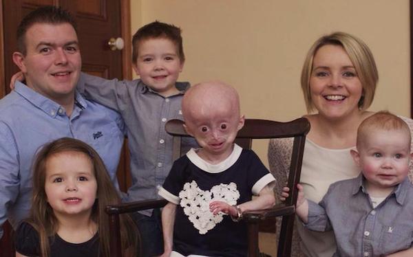 Xót xa hình ảnh bé 8 tuổi nhưng mang hình hài bà lão 70 tuổi do căn bệnh hiếm gặp - Ảnh 4