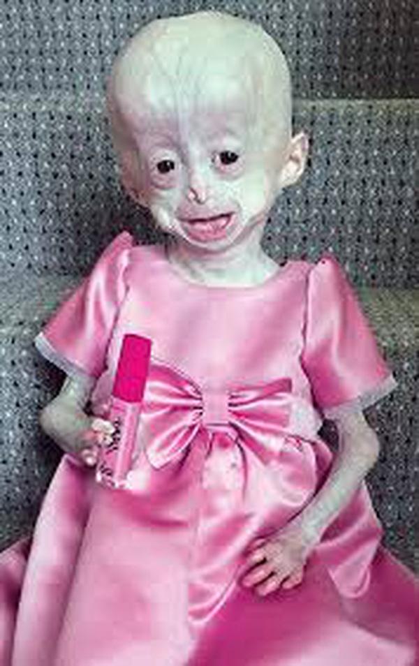 Xót xa hình ảnh bé 8 tuổi nhưng mang hình hài bà lão 70 tuổi do căn bệnh hiếm gặp - Ảnh 3