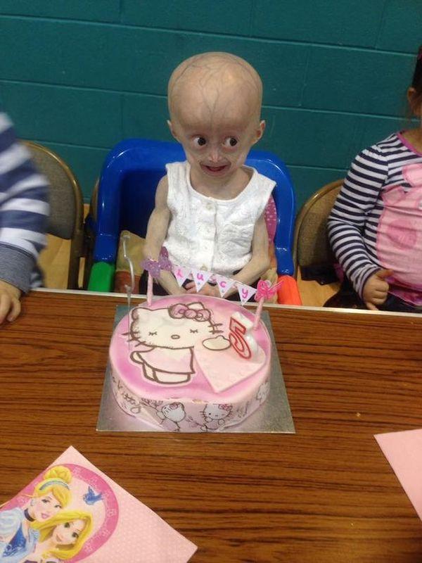 Xót xa hình ảnh bé 8 tuổi nhưng mang hình hài bà lão 70 tuổi do căn bệnh hiếm gặp - Ảnh 5
