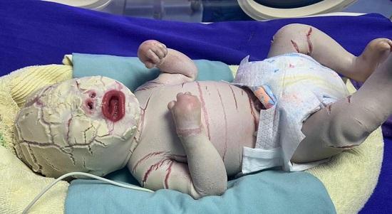Quảng Ninh: Bé sơ sinh mắc bệnh hiếm gặp, vảy trắng bao bọc toàn thân - Ảnh 1