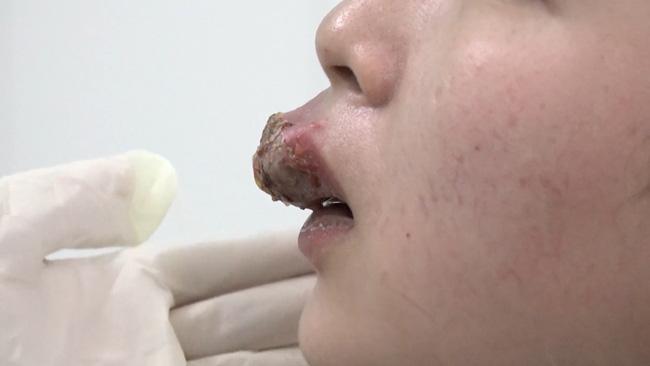 Xăm môi ăn Tết, không ngờ cô gái phải nhập viện vì nhiễm trùng, biến dạng đáng sợ - Ảnh 2